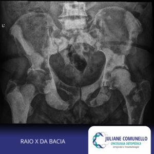 cancer prostata metastase ossea